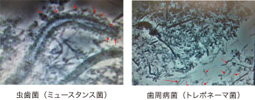 虫歯菌(ミュースタンス菌)