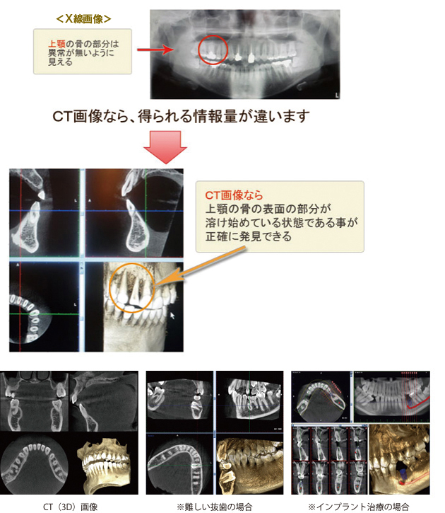 3DCT画像による精密診断 3DCT装置